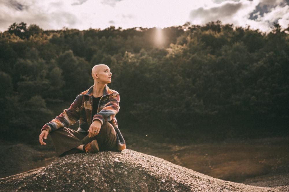 Fotoshooting mit Glatze im Gegenlicht Alopecia
