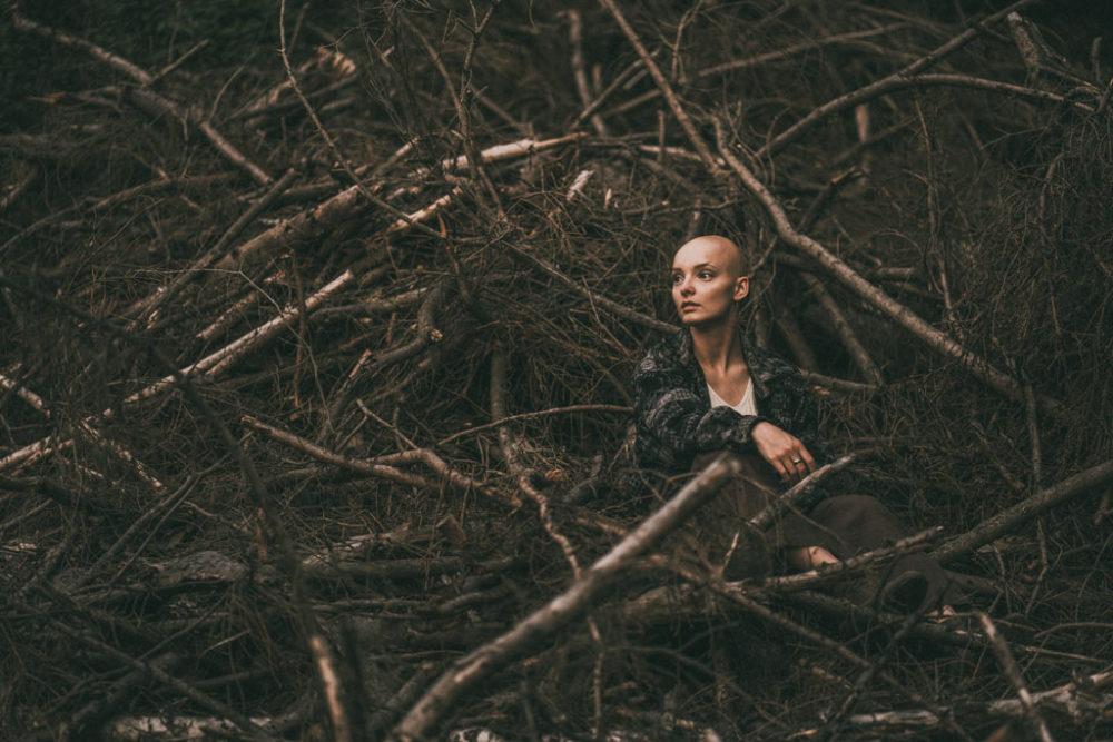 Fotoshooting Frau mit Glatze Alopecia